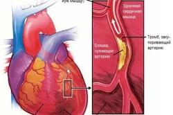Стенокардия как причина боли в области сердца