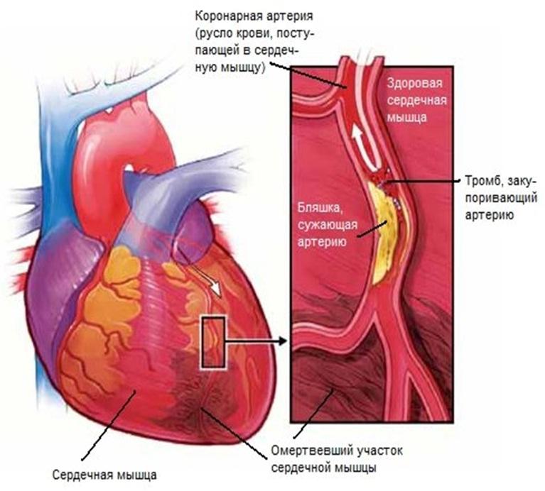 Болезни сердечной мышцы
