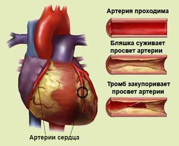 Отравление печени симптомы лечение