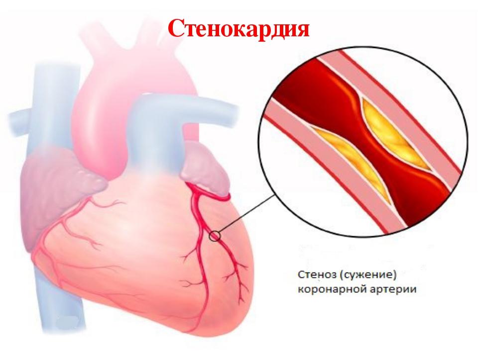 Признаки ишемической болезни сердца у женщин