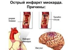 Схема обширного инфаркта