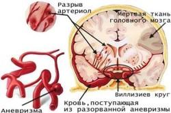 Схема возникновения инсульта