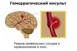 Геморрагический инсульт как причина комотозного состояния