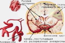 Инсульт - последствие тромбоэмболии