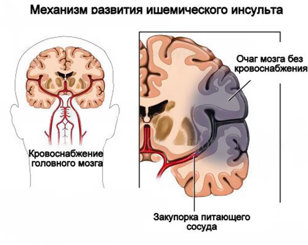 Стволовой инсульт: симптомы, лечение и последствия