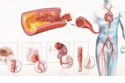 Проявления атеросклероза
