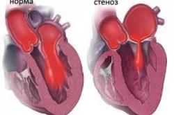 Стеноз клапанных отверстий - причина сердечной недостаточности