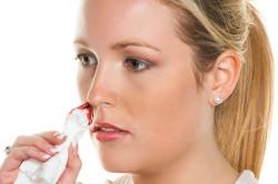 Кровотечение из носа при гипертонии