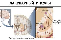 Схема лакунарного инсульта