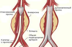 Схема лечения аневризмы аорты
