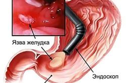 Болевой синдром в грудине при язве желудка