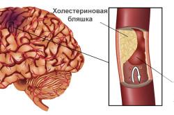 Транзиторная ишемическая атака - переходящее нарушение кровообращения мозга