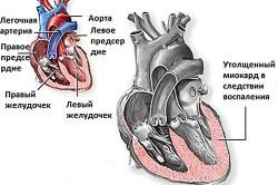 Миокардит как причина боли в области сердца