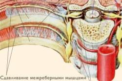 Герпетическая невралгия - причина колющей боли в сердце