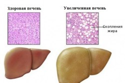Увеличение печени - симптом хронической сердечной недостаточности