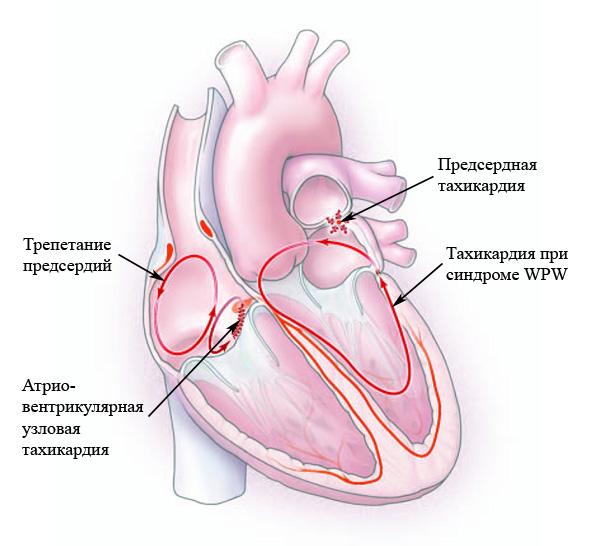 Почему учащенное сердцебиение бывает
