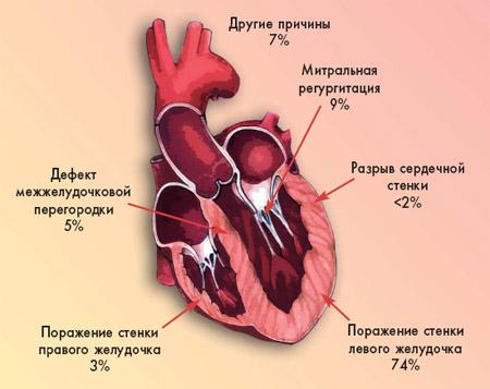 Кардиогенный шок: причины, симптомы и лечение