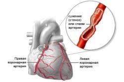 Стенокардия - симптом брадикардии