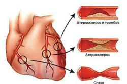 Атеросклероз венечных артерий