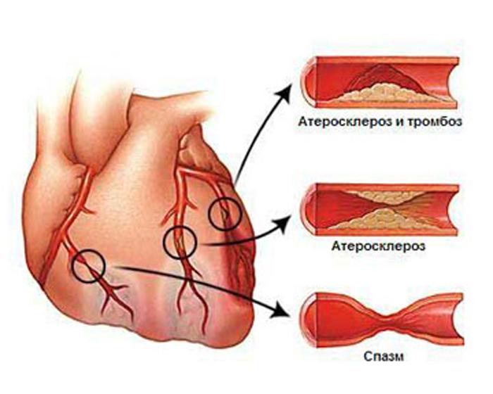 Приступ стенокардии: признаки и как снять