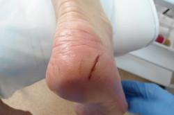 Трещины на стопе при атеросклерозе сосудов нижних конечностей