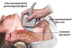Диагностика атеросклероза головного мозга