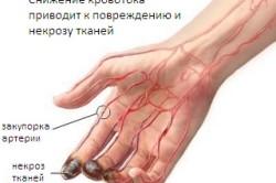 Схема васкулита