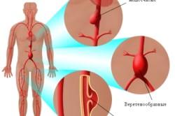Виды аневризмы аорты