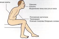 Симптомы ортопноэ