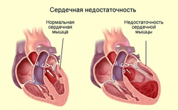 Сердечная недостаточность: причины, симптомы, лечение и последствия