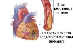 Механизм развития инфаркта миокарда
