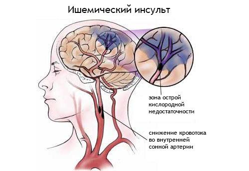 Лечение ишемического инсульта: препараты