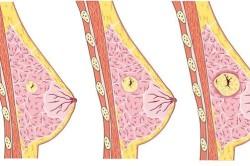 Стадии мастопатии