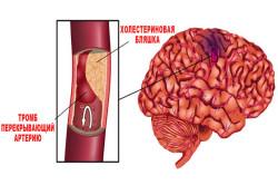 Кардиоэмболический подтип ишемического инсульта