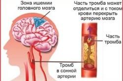 Зона ишемии головного мозга