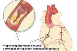 Ишемической болезнь сердца