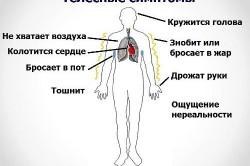 Симптомы вегето-сосудистой дистонии у мужчин
