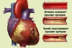 Закупорка артерий