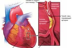 Схема инфаркта миокарда