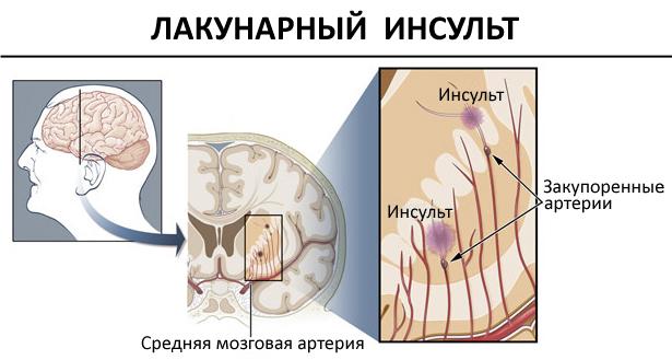Лакунарный инфаркт головного мозга что это такое