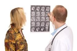 МРТ головы для диагностики лакунарного инфаркта