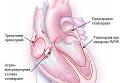 Тахикардия на схеме сердца