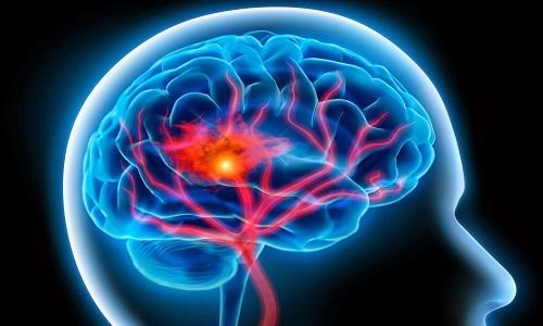 Проблема атеросклероза сосудов головного мозга