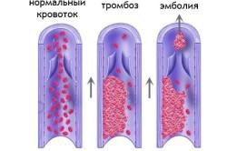 Тромб - причина лакунарного инфаркта